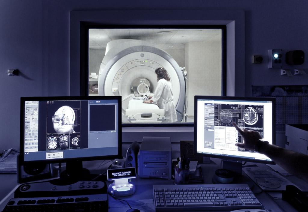 El diagnóstico por imágenes nucleares, beneficioso para pacientes con Alzheimer