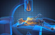 Las leyes que regulan el uso de la radiación para el tratamiento del cáncer: una oportunidad para la medicina